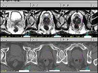 Image of the prostate